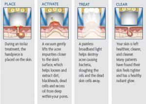 Acne - Skin Services in Newark DE | Premier Spa and Laser Center