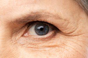Wrinkled Skin | Premier Spa and Laser Center